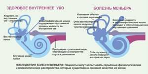 Синдром Меньера развитие, заболевание, симптомы, лечение, прогноз