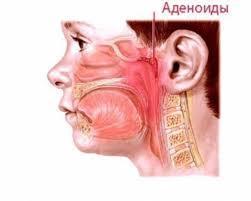 Гипертрофия аденоидов у детей 1, 2 и 3 степени - симптомы и признаки
